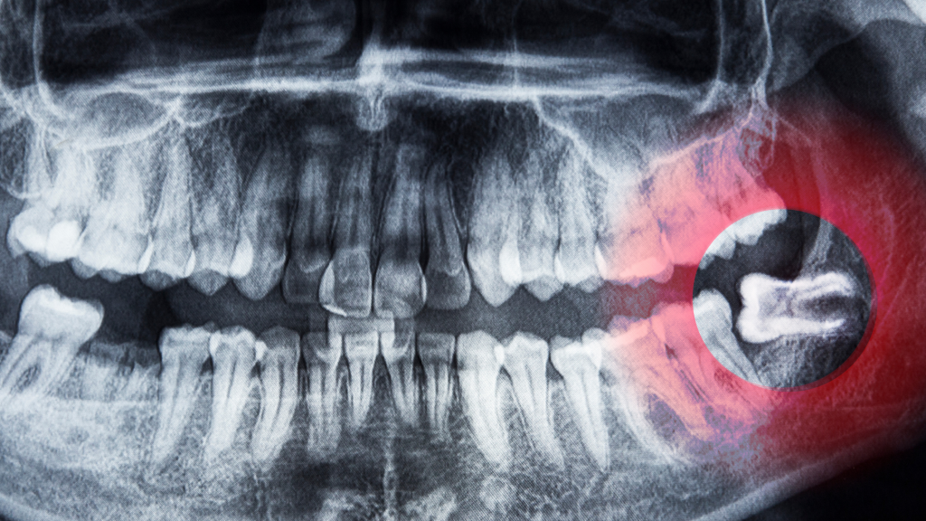 Complications With Wisdom Teeth Removal